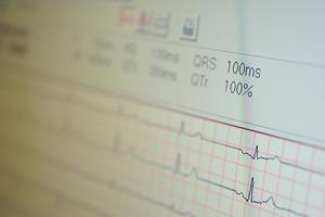 Elektrokardiogramm (EKG)